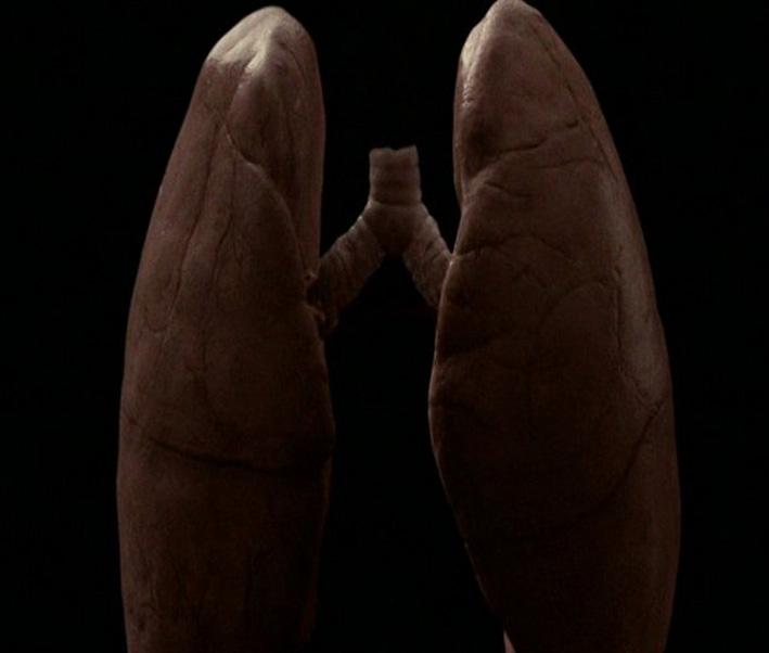 Poumon_Tabac